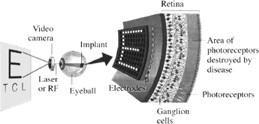 retins